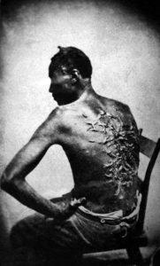 La foto risale alla fine del periodo schiavistico e testimonia la brutalità delle punizioni inflitte agli schiavi.